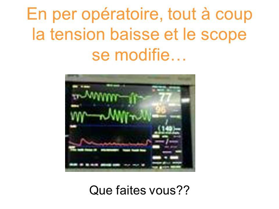 En per opératoire, tout à coup la tension baisse et le scope se modifie…