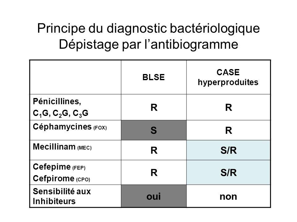 Principe du diagnostic bactériologique Dépistage par l'antibiogramme