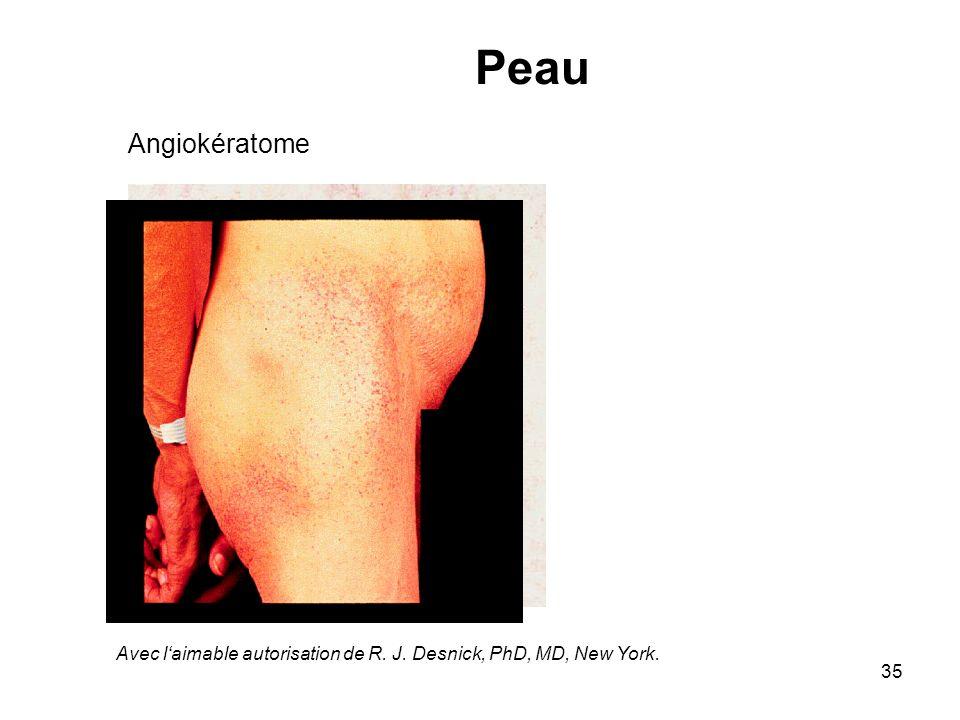 Peau Angiokératome Avec l'aimable autorisation de R. J. Desnick, PhD, MD, New York.