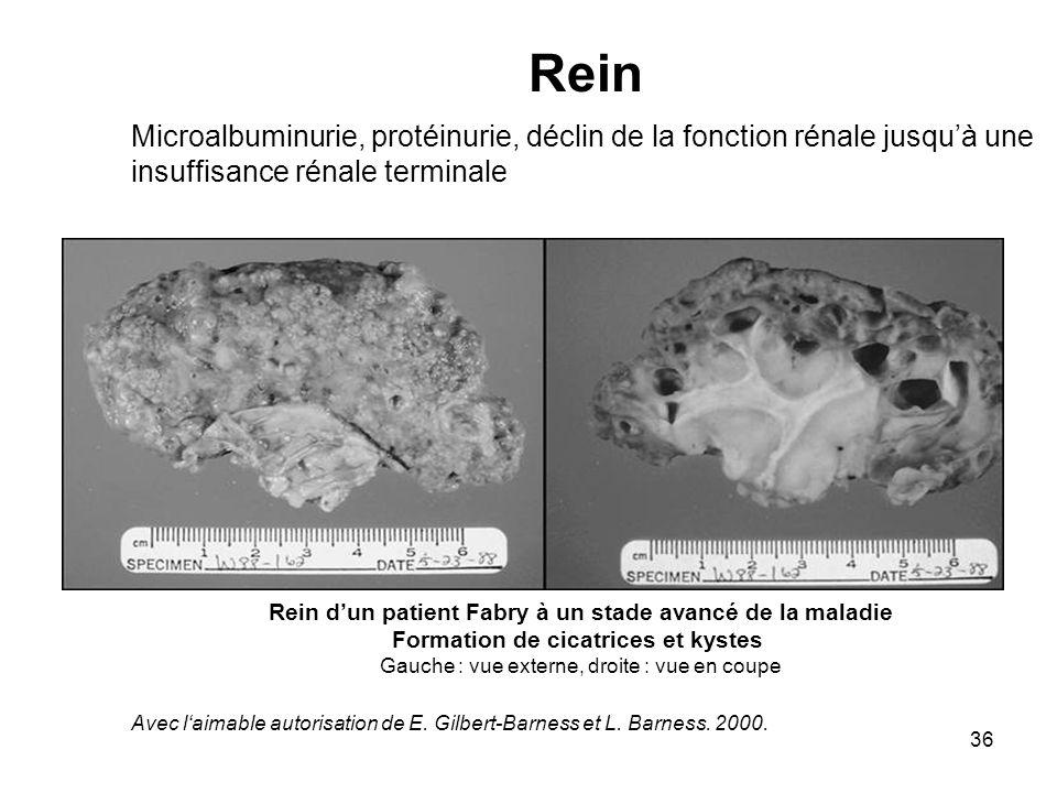 Rein Microalbuminurie, protéinurie, déclin de la fonction rénale jusqu'à une insuffisance rénale terminale.