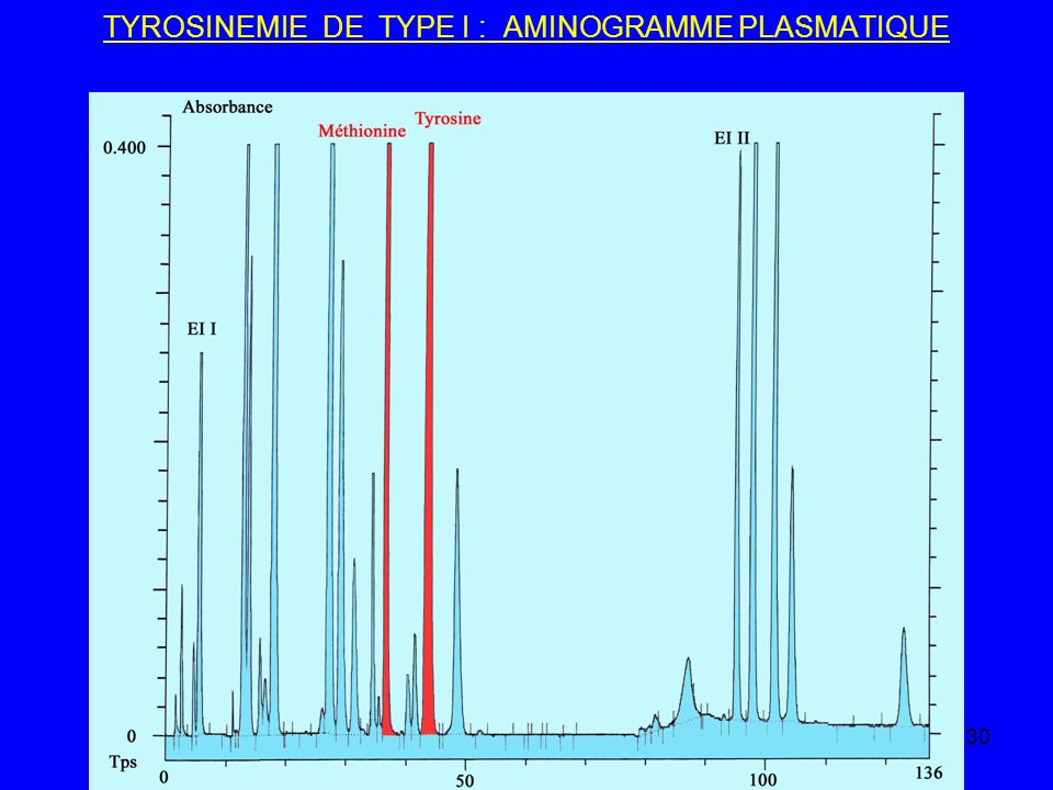 TYROSINEMIE DE TYPE I : AMINOGRAMME PLASMATIQUE