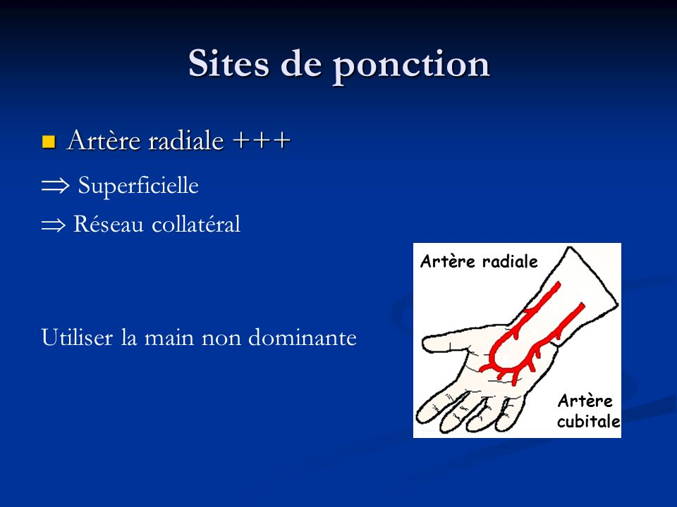 Sites de ponction Artère radiale +++  Superficielle