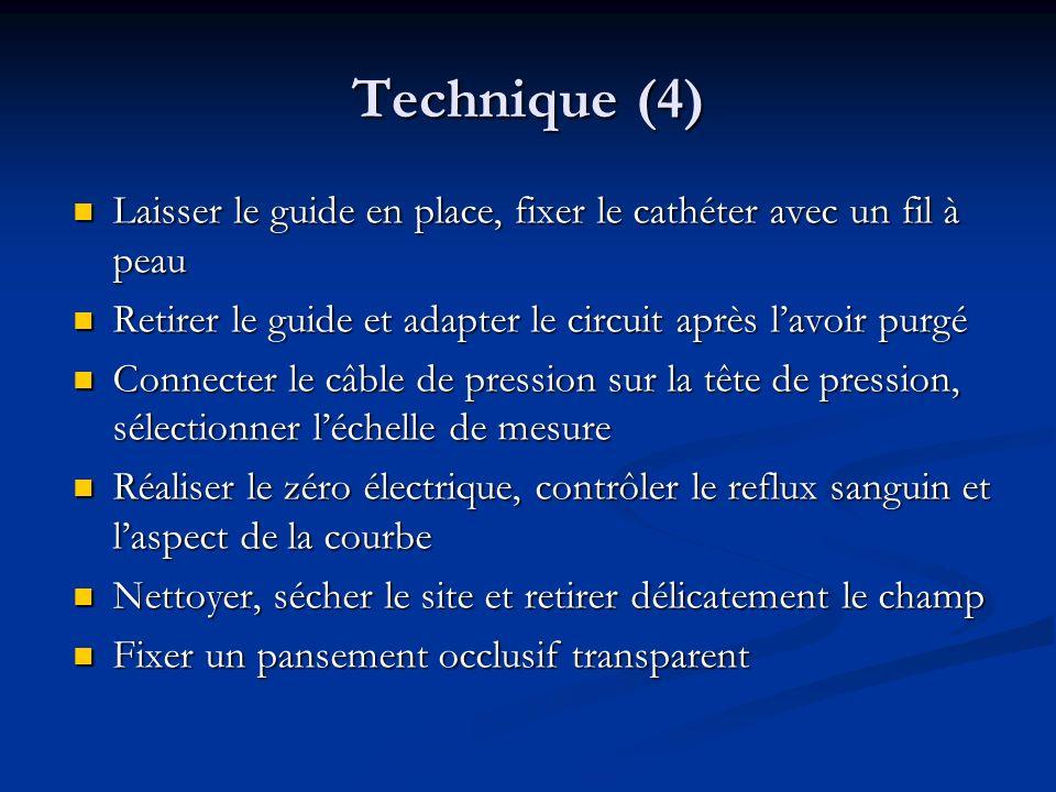 Technique (4) Laisser le guide en place, fixer le cathéter avec un fil à peau. Retirer le guide et adapter le circuit après l'avoir purgé.