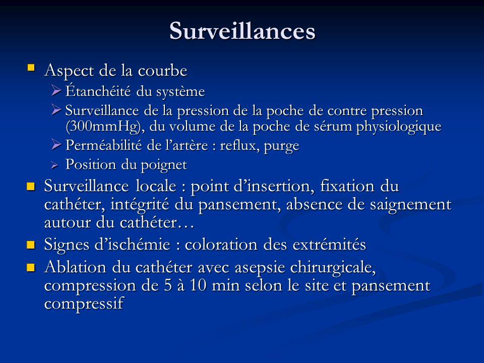 Surveillances Aspect de la courbe
