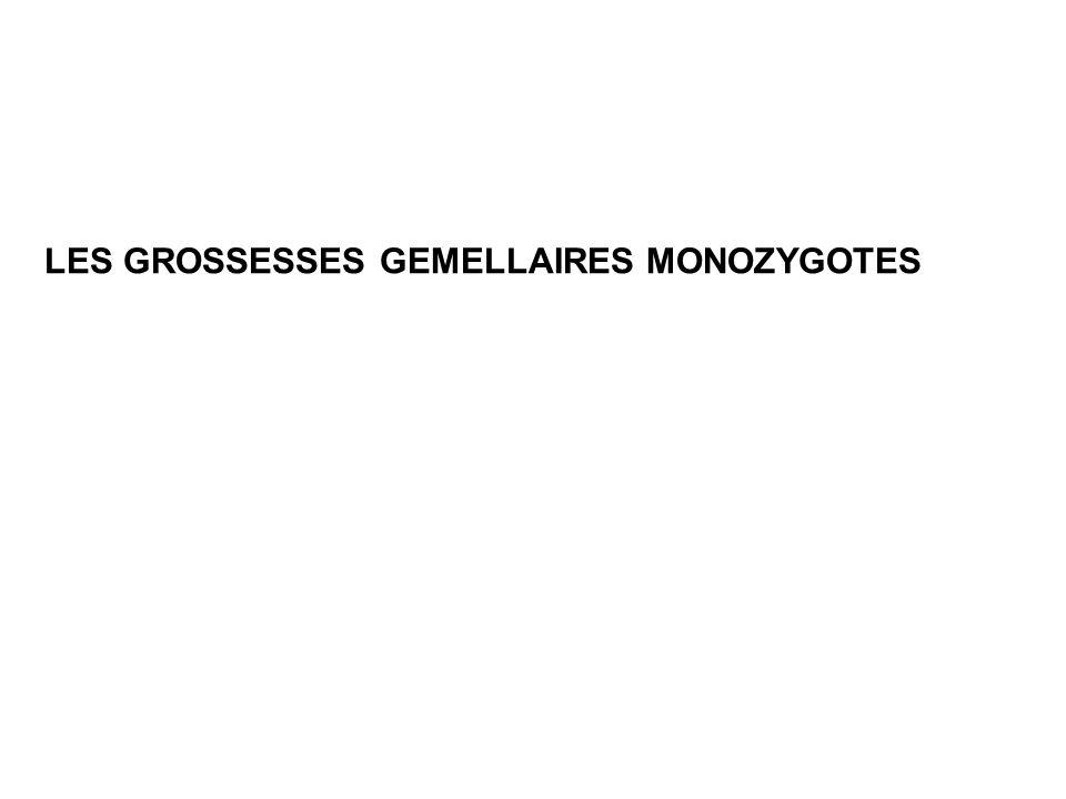 LES GROSSESSES GEMELLAIRES MONOZYGOTES