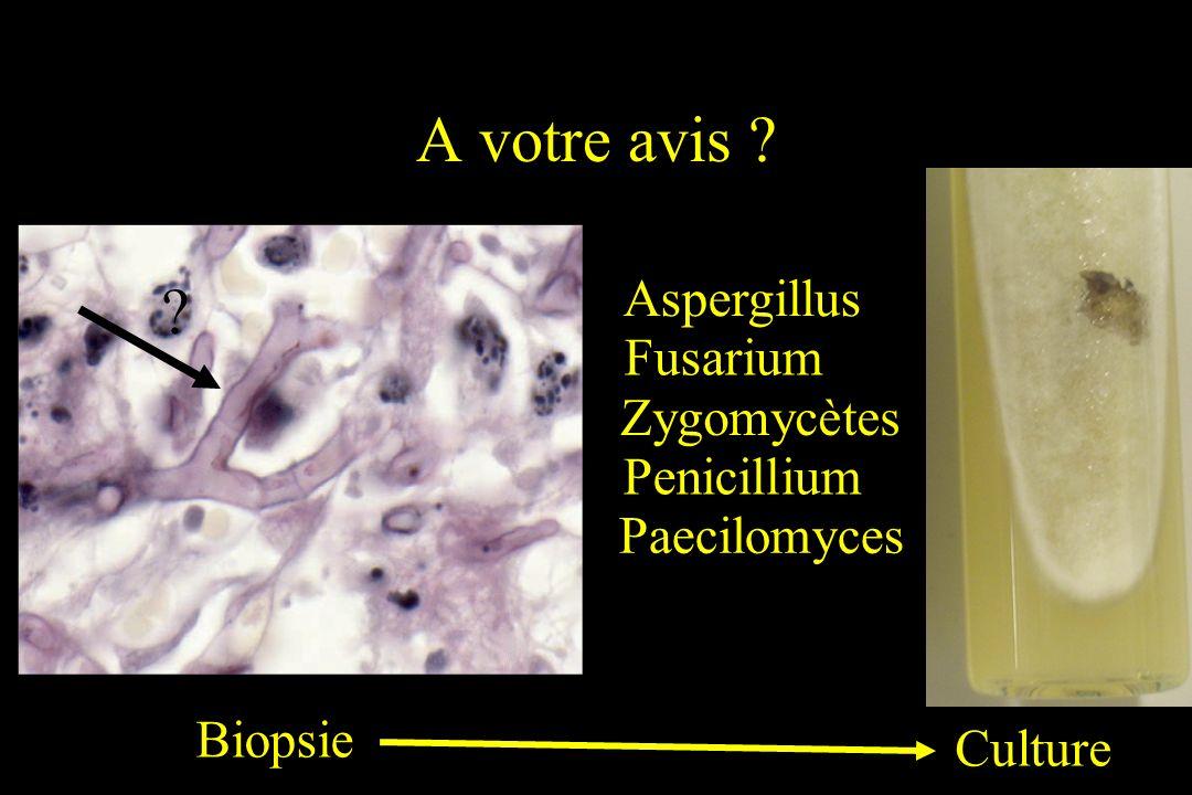 A votre avis Aspergillus Fusarium Zygomycètes Penicillium
