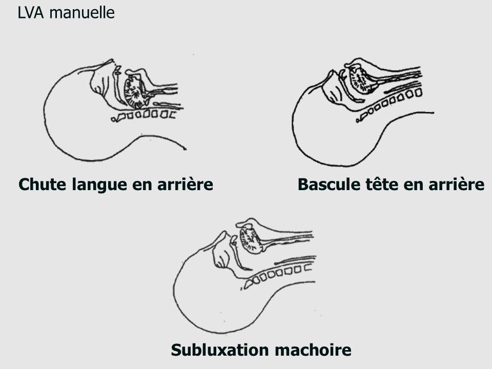 LVA manuelle Chute langue en arrière Bascule tête en arrière Subluxation machoire