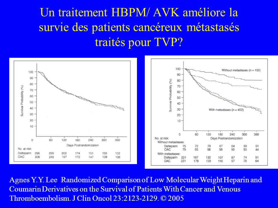 Un traitement HBPM/ AVK améliore la survie des patients cancéreux métastasés traités pour TVP