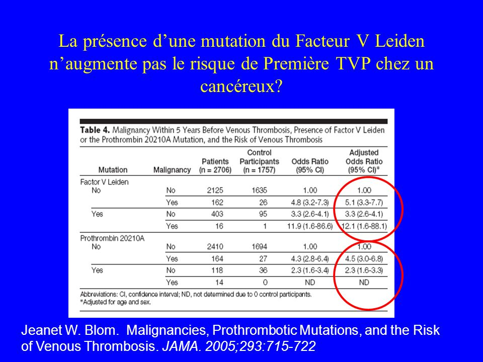 La présence d'une mutation du Facteur V Leiden n'augmente pas le risque de Première TVP chez un cancéreux