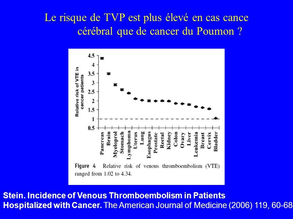 Le risque de TVP est plus élevé en cas cance cérébral que de cancer du Poumon