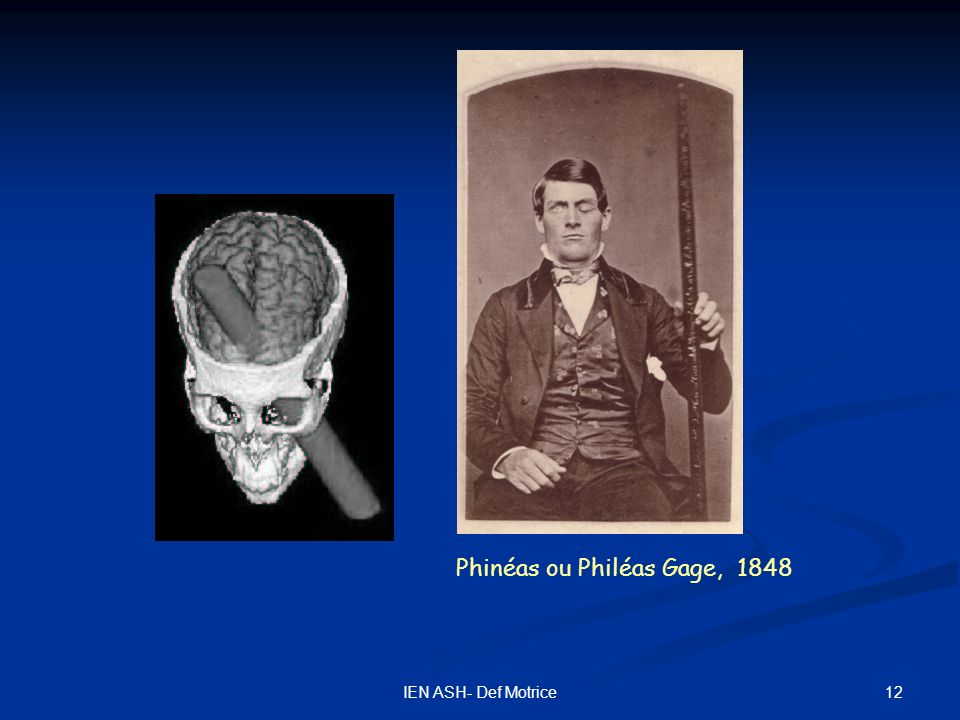 Phinéas ou Philéas Gage, 1848
