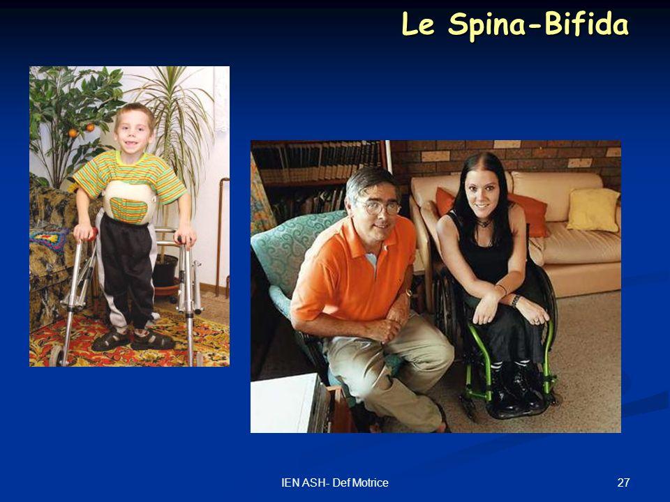 Le Spina-Bifida