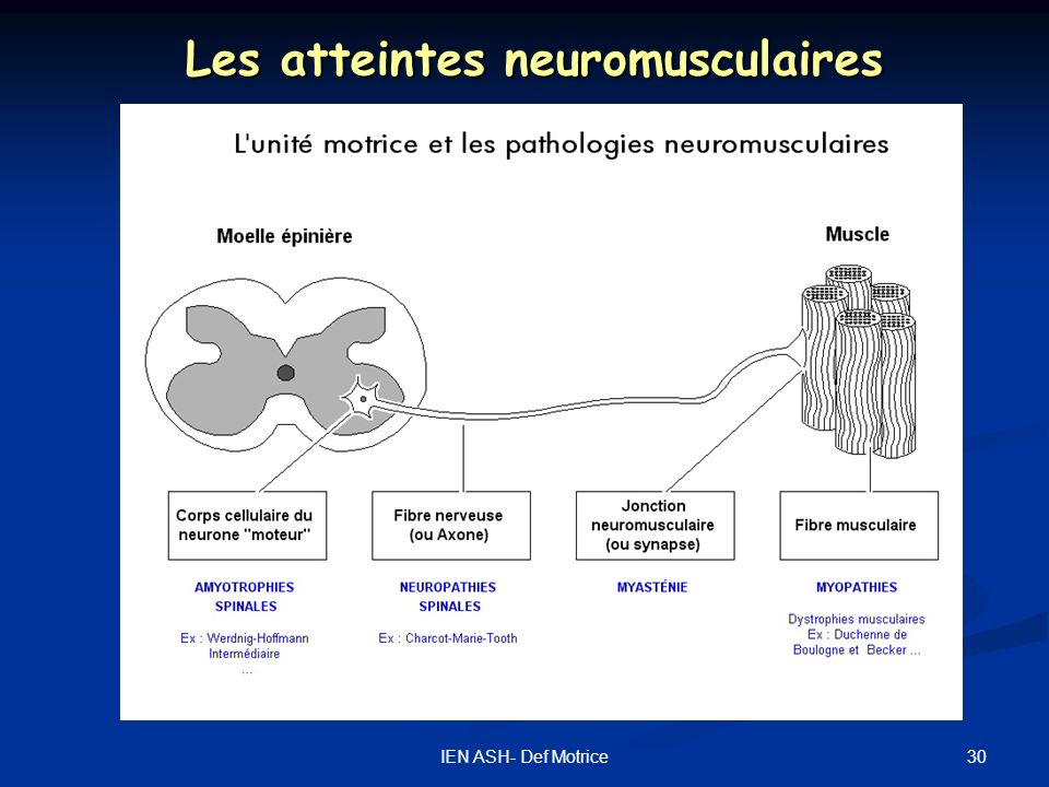 Les atteintes neuromusculaires
