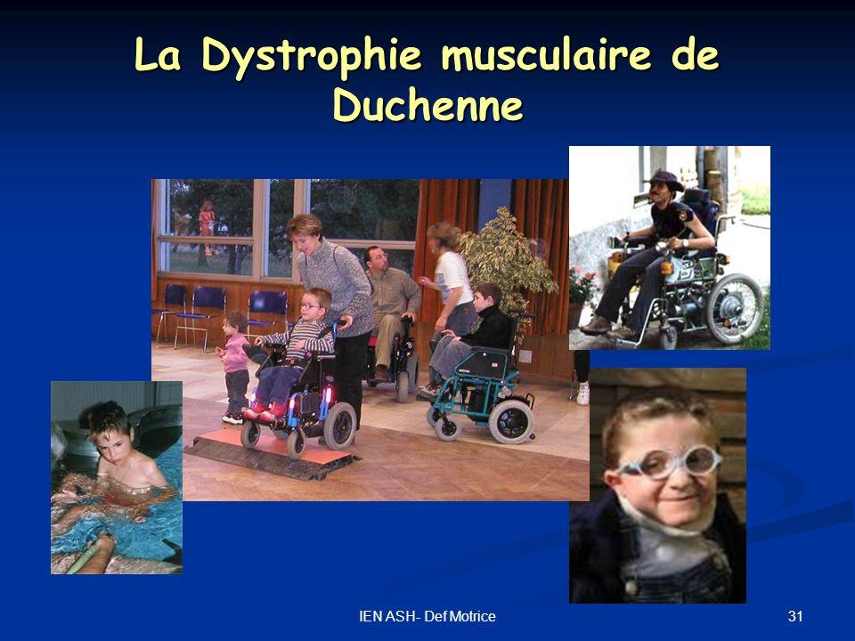 La Dystrophie musculaire de Duchenne