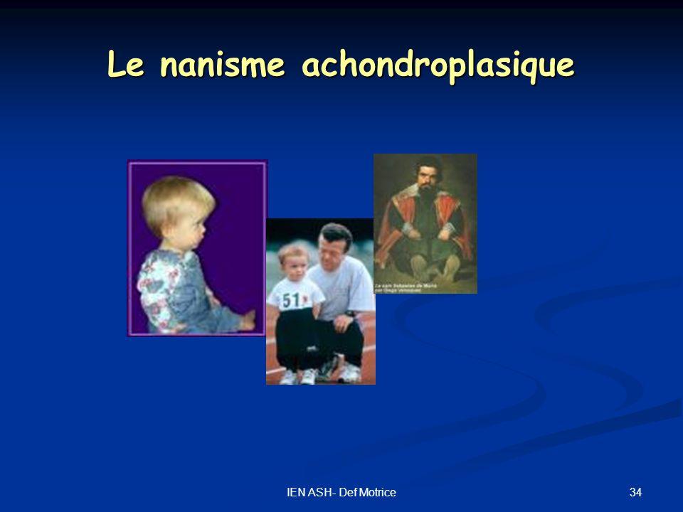 Le nanisme achondroplasique