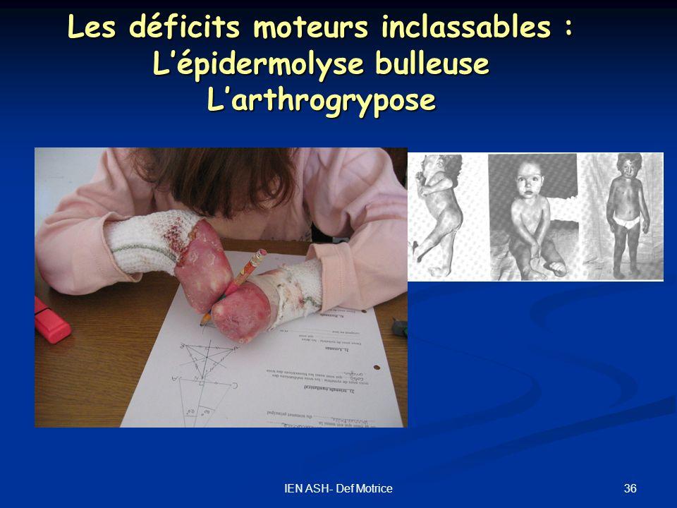 Les déficits moteurs inclassables : L'épidermolyse bulleuse L'arthrogrypose