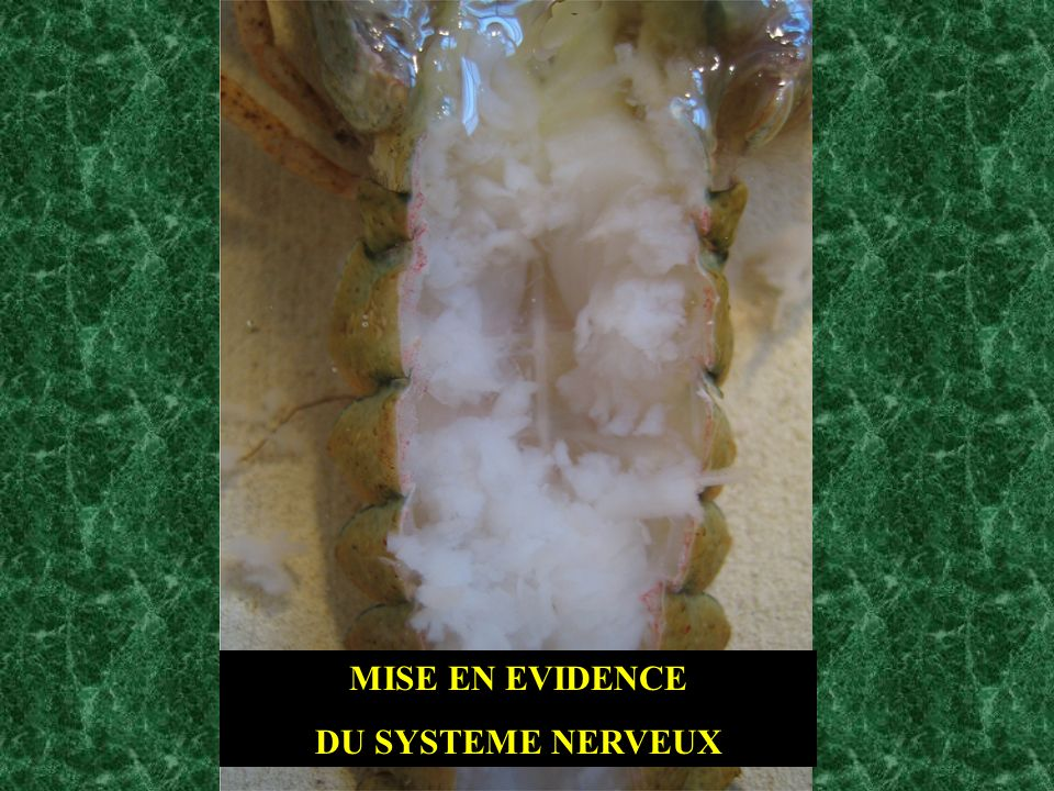 MISE EN EVIDENCE DU SYSTEME NERVEUX
