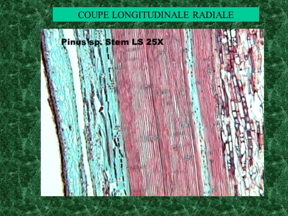 COUPE LONGITUDINALE RADIALE