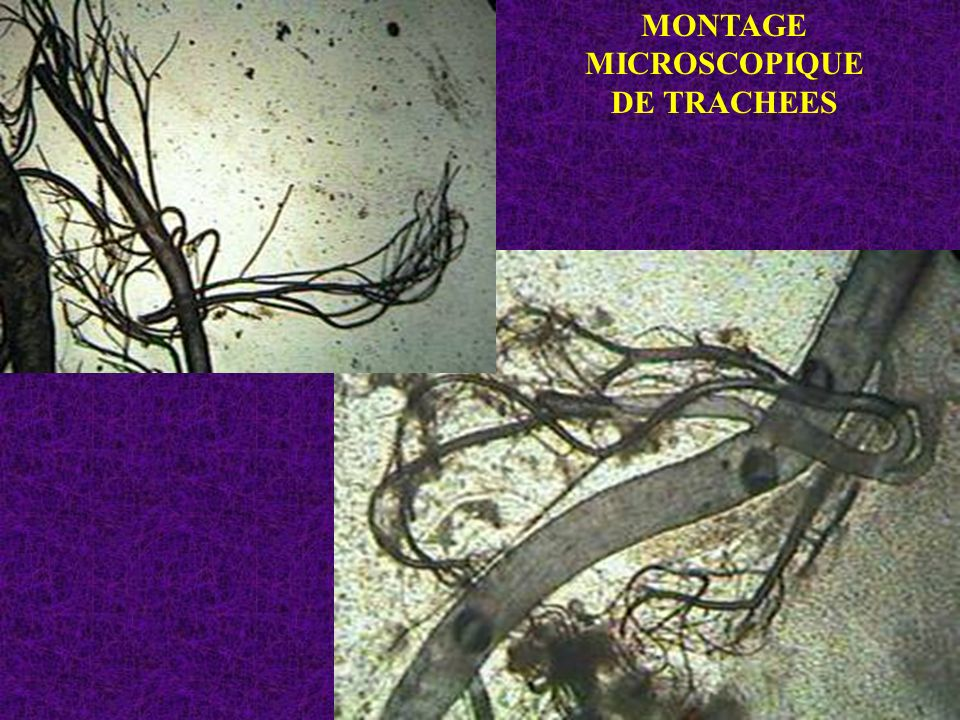 MONTAGE MICROSCOPIQUEDE TRACHEES