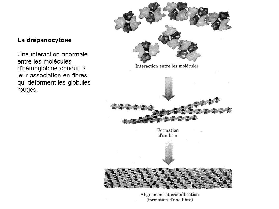 La drépanocytoseUne interaction anormale entre les molécules d hémoglobine conduit à leur association en fibres qui déforment les globules rouges.