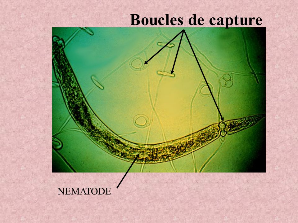 Boucles de capture NEMATODE
