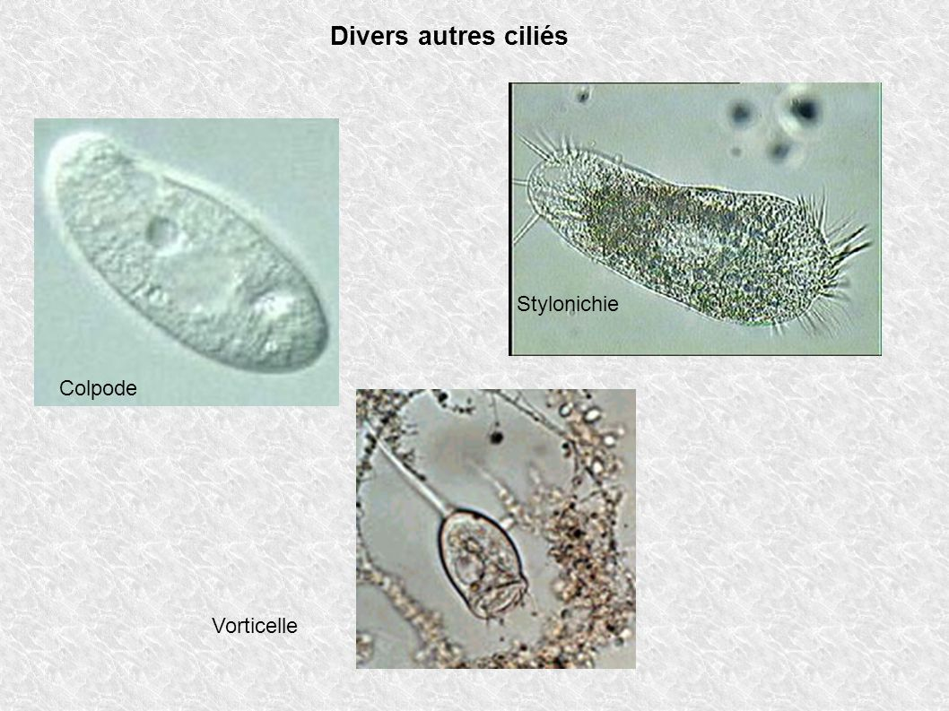 Divers autres ciliés Stylonichie Colpode Vorticelle
