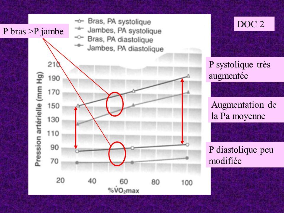 DOC 2 P bras >P jambe. P systolique très augmentée.