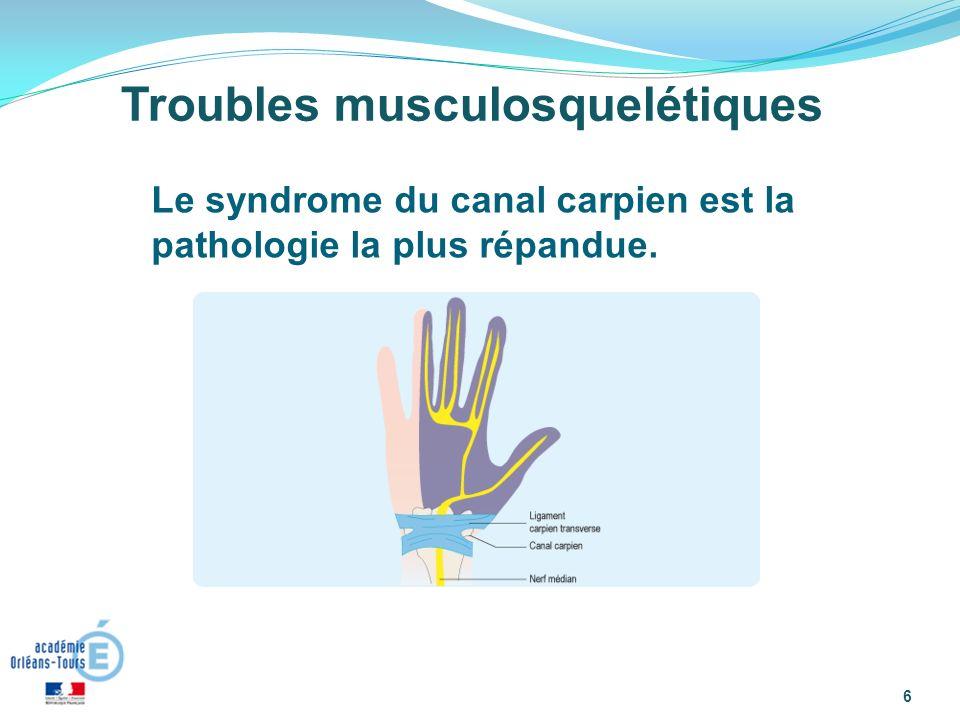 Troubles musculosquelétiques