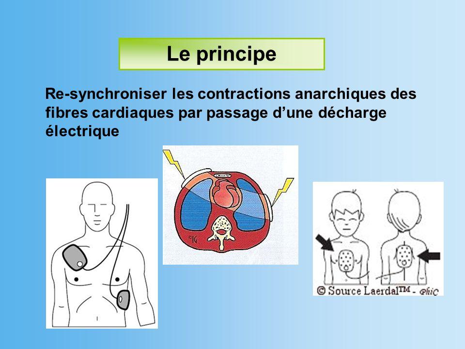 Le principeRe-synchroniser les contractions anarchiques des fibres cardiaques par passage d'une décharge électrique.