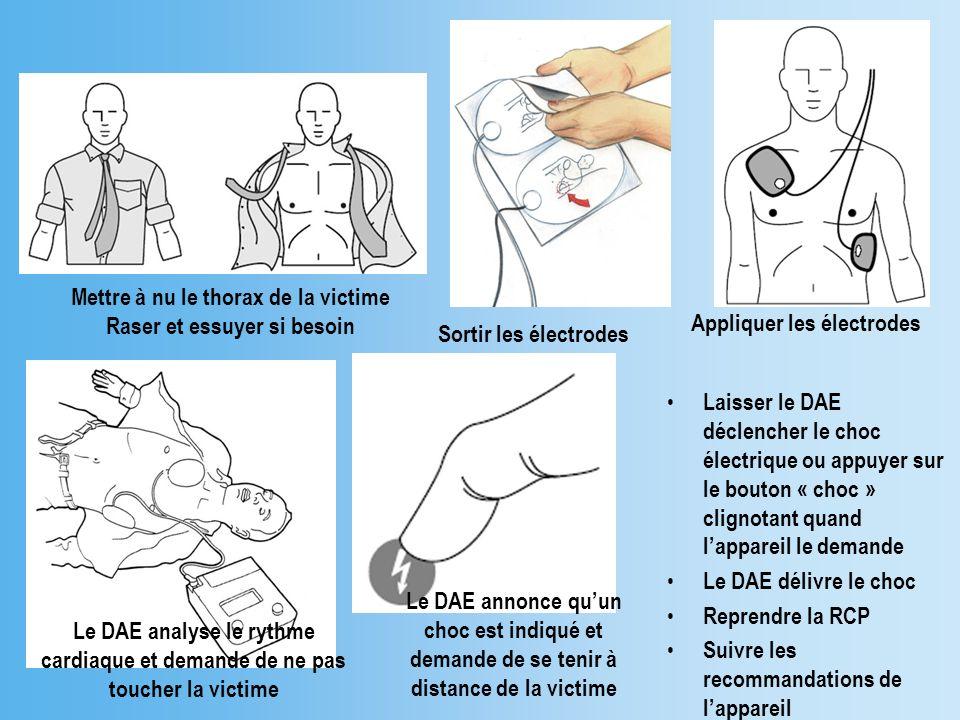 Mettre à nu le thorax de la victime Raser et essuyer si besoin