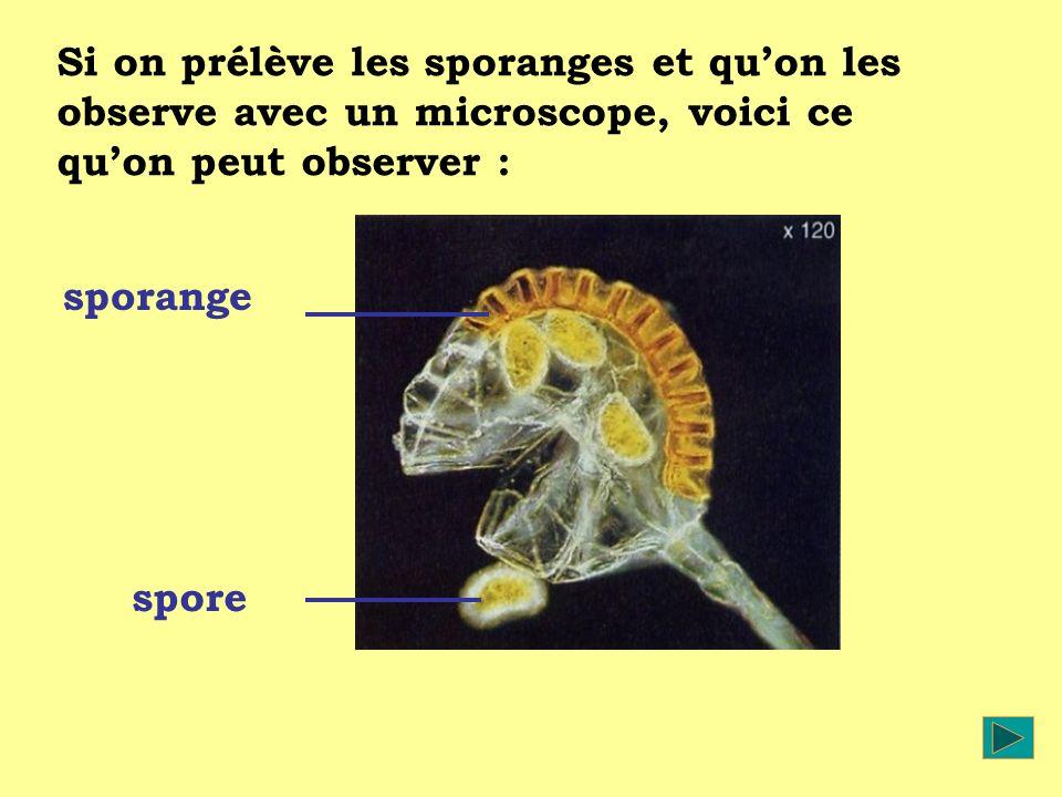 Si on prélève les sporanges et qu'on les observe avec un microscope, voici ce qu'on peut observer :