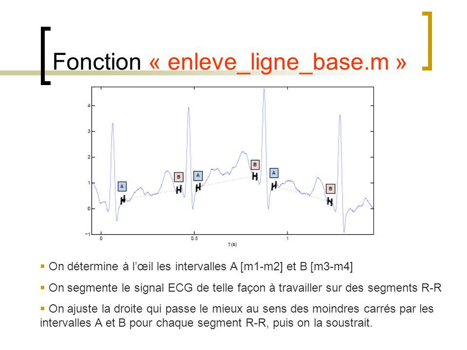 Fonction « enleve_ligne_base.m »