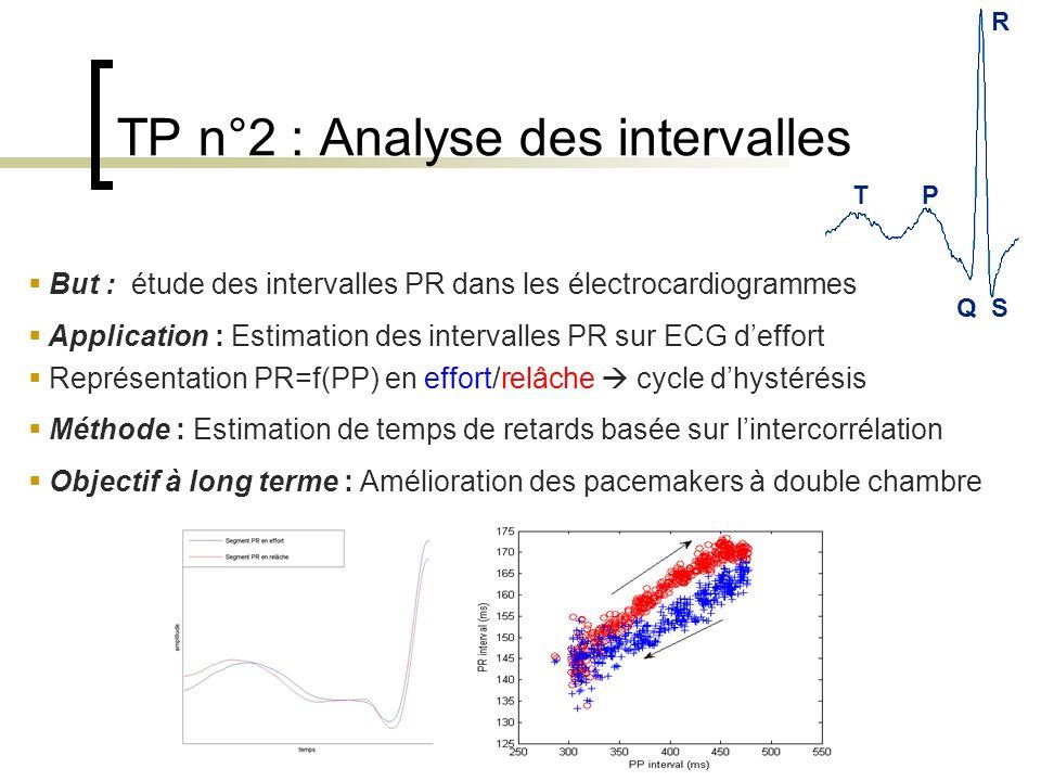 TP n°2 : Analyse des intervalles