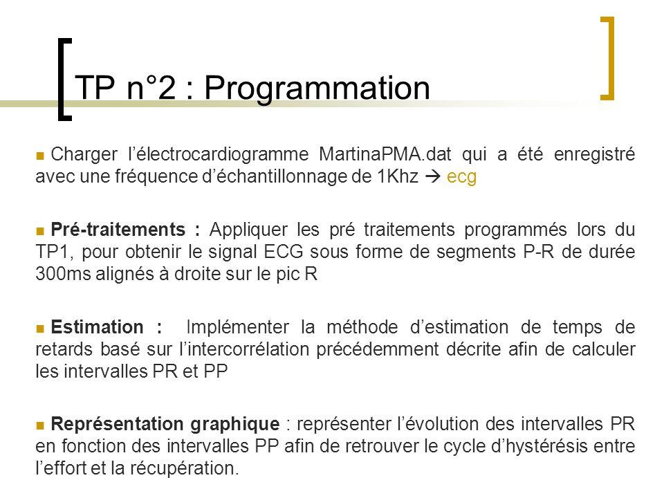 TP n°2 : Programmation Charger l'électrocardiogramme MartinaPMA.dat qui a été enregistré avec une fréquence d'échantillonnage de 1Khz  ecg.