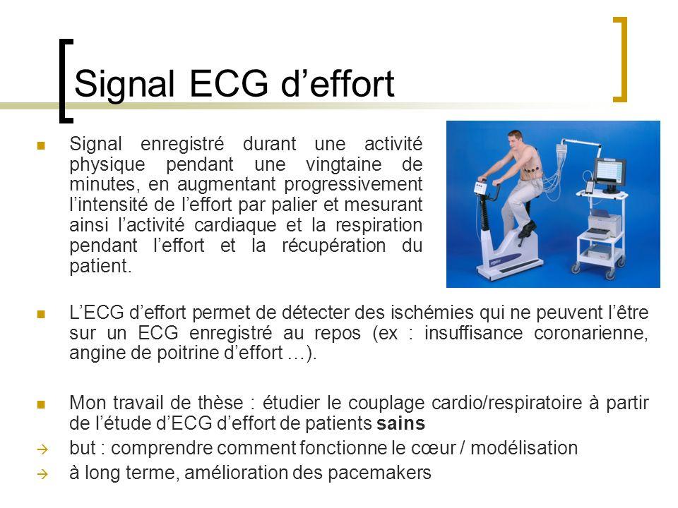 Signal ECG d'effort