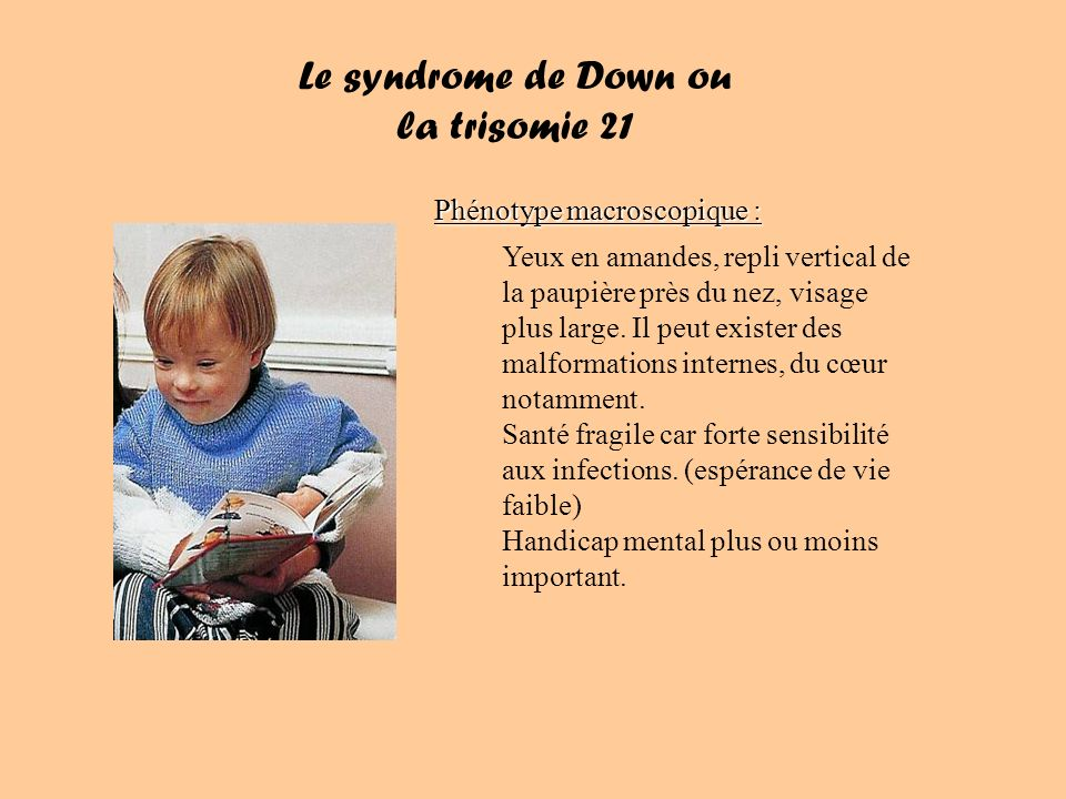 Le syndrome de Down ou la trisomie 21