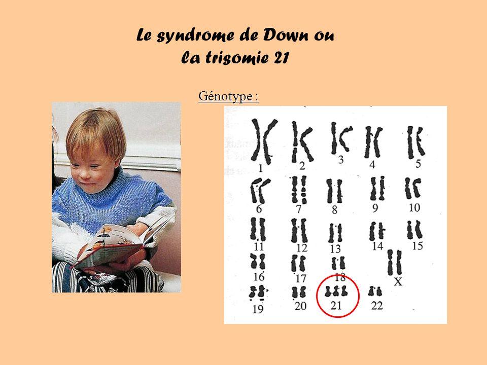 Le syndrome de Down ou la trisomie 21