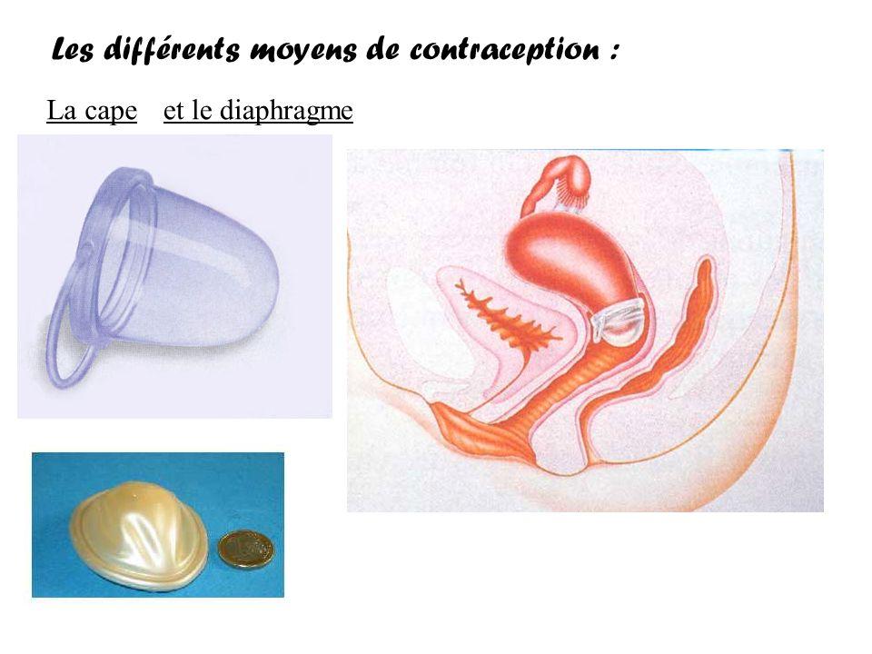 Les différents moyens de contraception :
