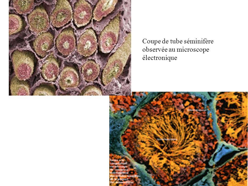 Coupe de tube séminifère observée au microscope électronique