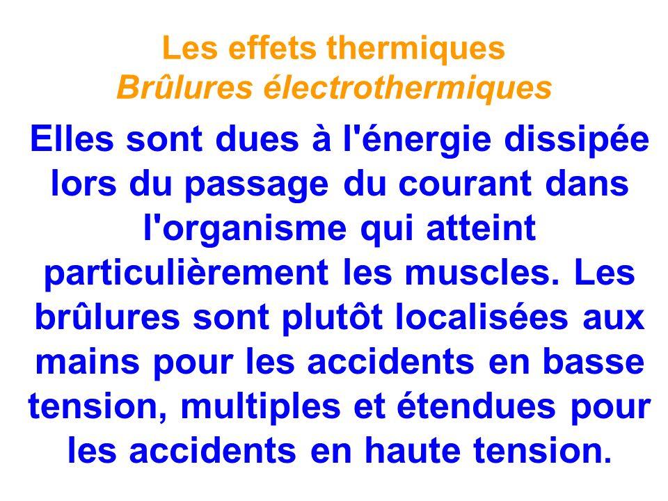 Les effets thermiques Brûlures électrothermiques