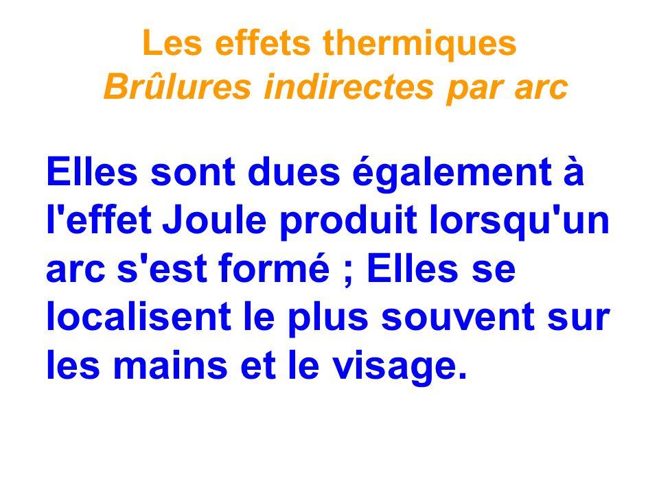Les effets thermiques Brûlures indirectes par arc