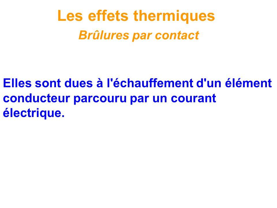 Les effets thermiques Brûlures par contact