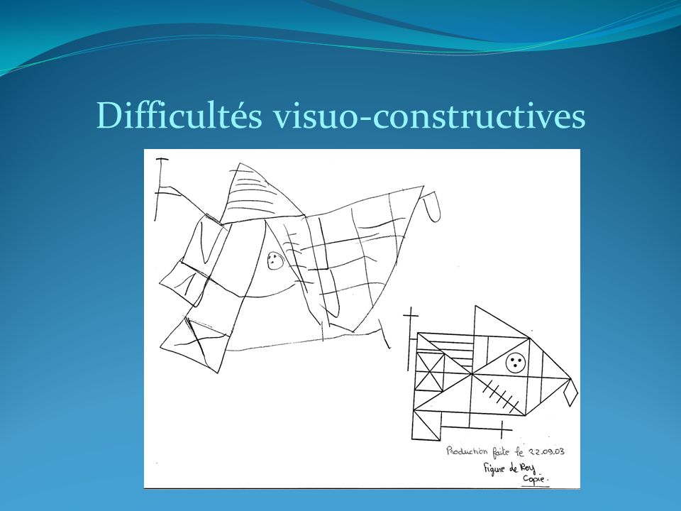 Difficultés visuo-constructives