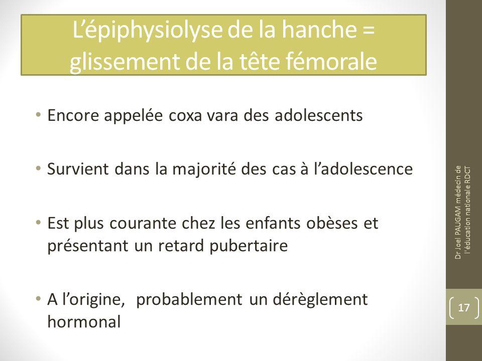 L'épiphysiolyse de la hanche = glissement de la tête fémorale