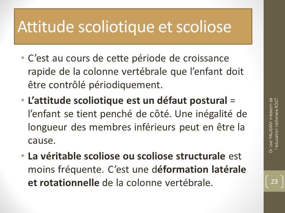 Attitude scoliotique et scoliose