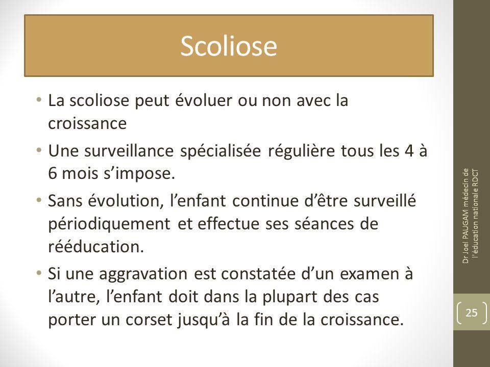 Scoliose La scoliose peut évoluer ou non avec la croissance