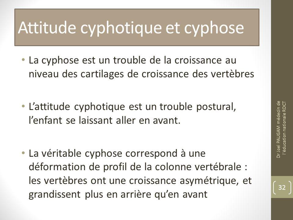 Attitude cyphotique et cyphose