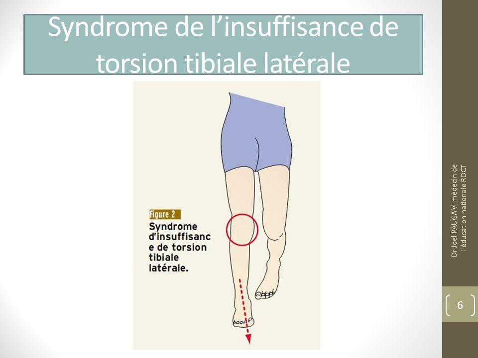 Syndrome de l'insuffisance de torsion tibiale latérale