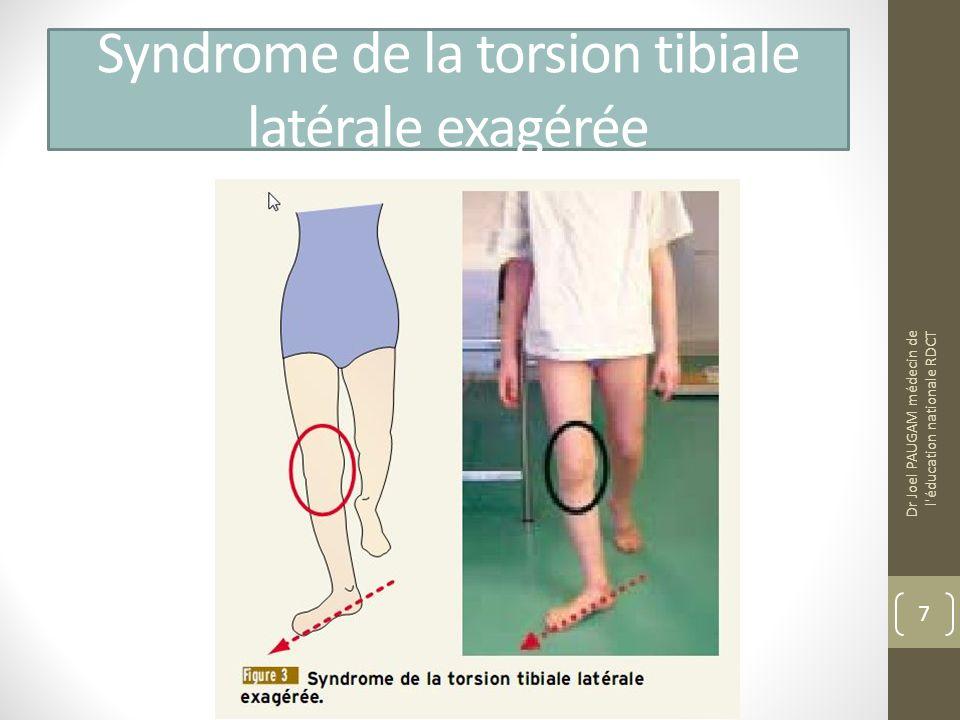 Syndrome de la torsion tibiale latérale exagérée