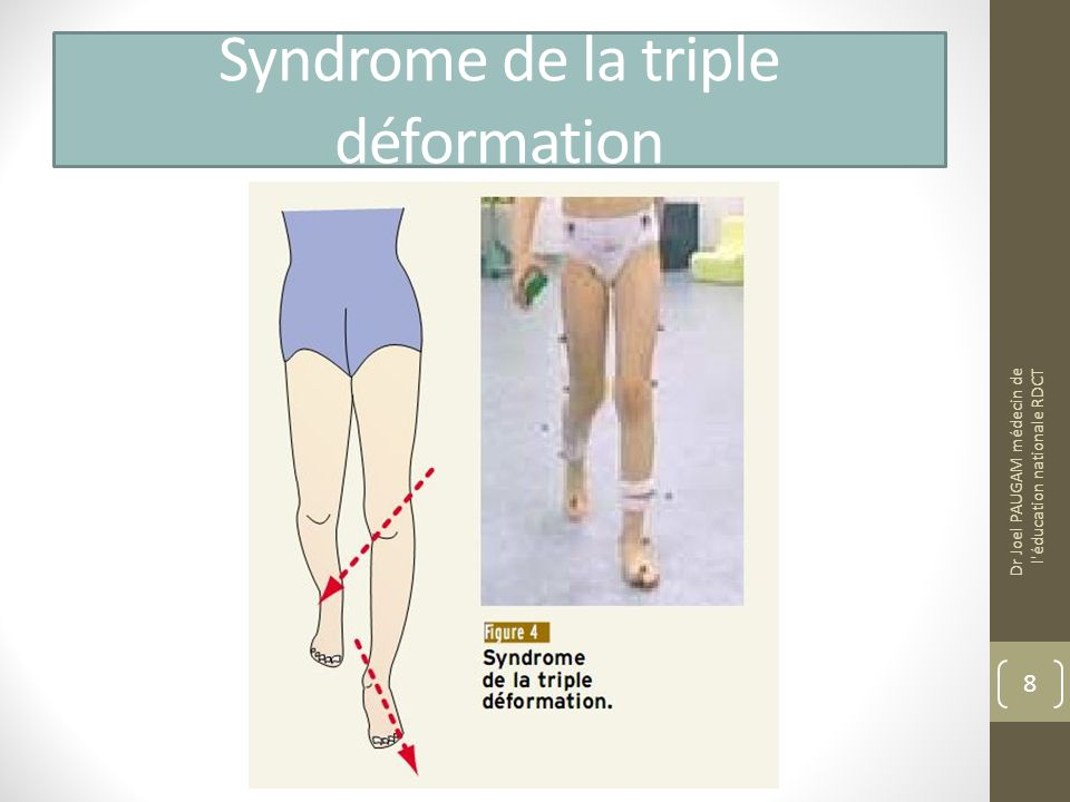 Syndrome de la triple déformation